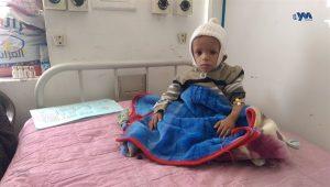 تحذير أممي الجوع يتمدد نحو ملايين الأسر اليمنية